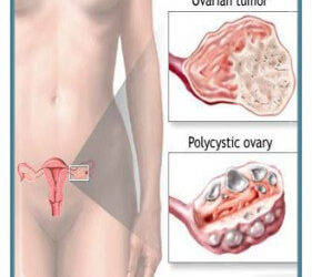 Ploycystic Ovarian Disease