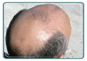 Say No to Baldness !